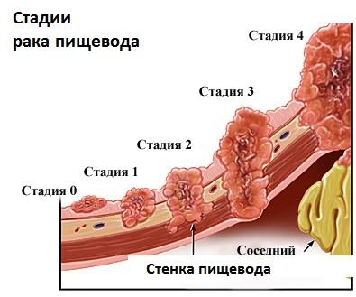 стадии рака пищевода