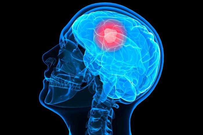 глиобластома логовного мозга