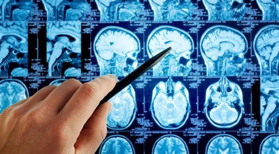 глиобластома логовного мозга диагностика