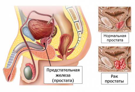 рак простаты лечение