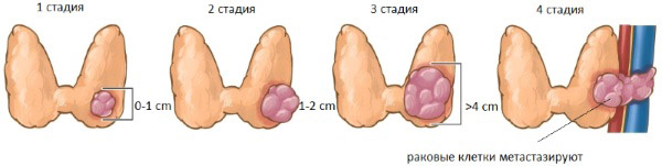 стадии рака щитовидки