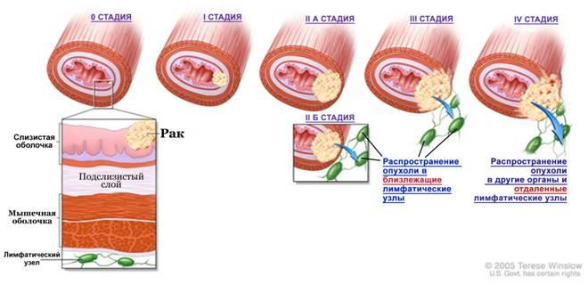 рак пищевода стадии
