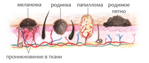 меланома кожи вид