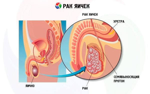 рак яичка - факторы риска