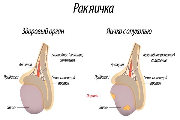 Рак яичка лечение