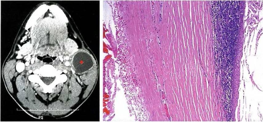 бранхиогенный рак